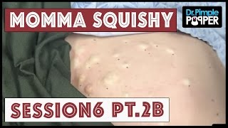 Download Steatocystomas & Momma Squishy: Session 6 Part 2B Video