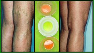 Download GET RID OF VARICOSE VEINS WITH 3 POWERFUL EFFECTIVE TREATMENTS |100% WORKS | Khichi Beauty Video
