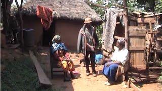 Download Two children die in separate rabies incidents in Kisii Video
