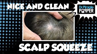 Download A Nice and Clean Cut Scalp Video