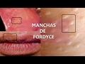 Download Manchas de Fordyce una confusión con VPH Video
