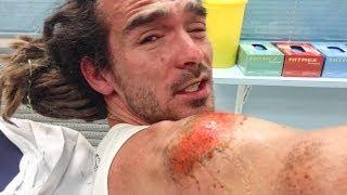 Download BRUTAL SKATING ACCIDENT Video