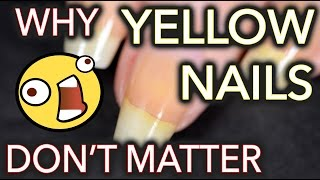 Download Why yellow nails DON'T MATTER / Don't whiten your nails Video