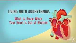 Download Living with Arrhythmias: What to Know When Your Heart is Out of Rhythm Video