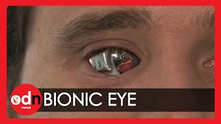 Download Man sees with 'bionic eye' Video