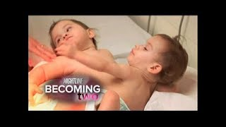 Download Conjoined Twins, Erika & Eva Sandoval Successfully Separated Video