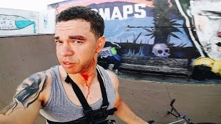Download WORST BMX CRASH OF MY ENTIRE LIFE Video