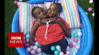 Download What is the future for these conjoined twins? - BBC News Video