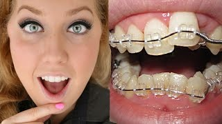 Download Braces Before And After | Time Lapse Transformation | Ashley Craig Video