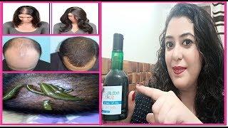 Download इसे 1 बार लगाएँगे तो जिंदगी में कभी बाल नही झड़ेंगे - गंजेपन से मुक्ति लंबे बाल 100% Effective Video