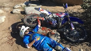 Download WORST DIRT BIKE CRASH EVER!!! (HELICOPTER RESCUE) Video