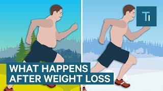 Download What Losing Weight Does To Your Body And Brain Video