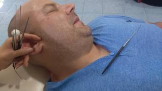 Download Ear Cleaning Huay Xai, Laos Video