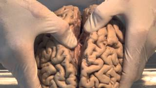 Download Introduction: Neuroanatomy Video Lab - Brain Dissections Video