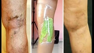 Download GET RID OF VARICOSE VAIN IN A SINGLE NIGHT WITH 3 POWERFUL TREATMENT Video