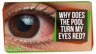 Download Why Do Your Eyes Get Red in the Pool? Video