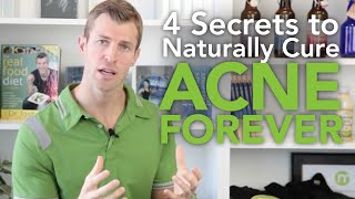 Download How to Cure Acne: 4 Secrets to Naturally Getting Rid of Acne Forever Video