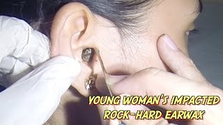 Download Young Woman's Impacted Rock-Hard Earwax Removal Video