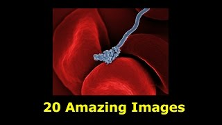 Download 20 Amazing Scanning Electron Microscope Images (from cancer cells to HIV Virus) Video
