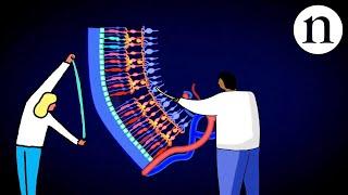 Download Retinal repair: Bringing stem cells into focus Video