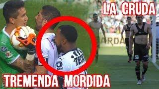Download Dorlan Pabon dio Mordida en el Chivas Monterrey y Santos se cambia Durante el Partido, #LaCruda Video