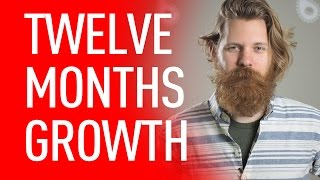 Download 12 Months Hair Growth Update | Eric Bandholz Video