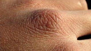 Download Kuru Eller İçin Önemli Bakım Yöntemleri Video