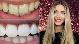 Download How I Whitened My Teeth at Home | Danielle Mansutti Video