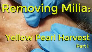 Download Removing Milia: Yellow Pearl Harvest - Part I Video