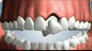 Download 4 Options to Replace a Tooth Video