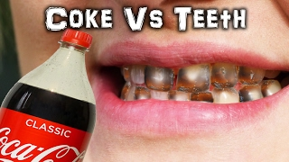 Download Can you PEEL a Tooth? Coke Vs Teeth Video