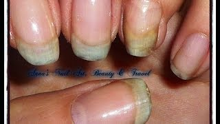 Download My Nail Journey Update 1 Video