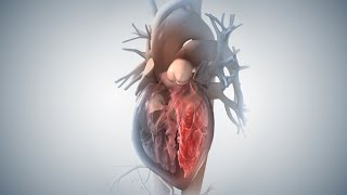 Download Acute Coronary Syndrome and Heart Attack Video