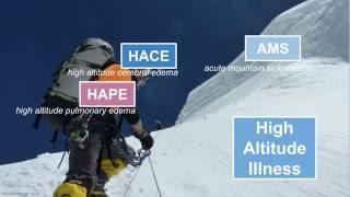 Download High Altitude Illness Video