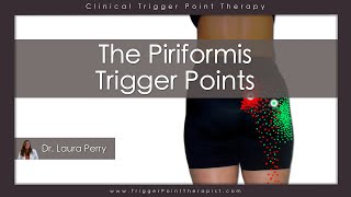 Download The Piriformis Trigger Points Video