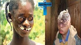 Download Top 10 Most Bizarre People In The World You Won't Believe Actually Exist Video