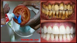 Download Magical Teeth Whitening Remedy, Get whiten Teeth at home in 2 minutes Video