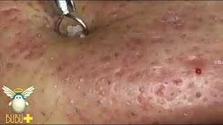 Download Cystic Acne, Blackheads And Pimples Extraction On Face Acne Treatment 250722! Video
