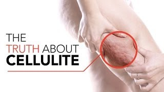 Download How to GET RID OF CELLULITE (Best Exercises and Tips to Reduce Cellulite!!) Video