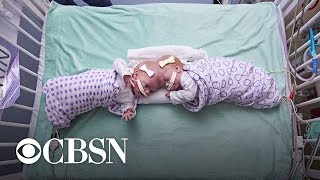 Download How doctors separated twin girls conjoined at the brain Video