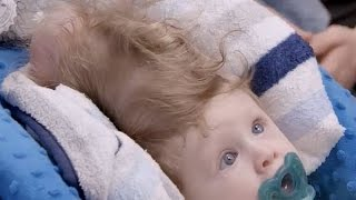 Download Miracle surgery saves baby born with brain growing outside his head Video