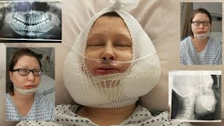 Download Jaw Surgery Day Vlog + Recovery day 1-30 Video