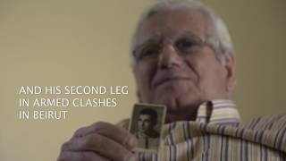 Download Life after losing a limb Video