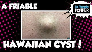 Download A Friable Hawaiian Cyst 🌺 Video
