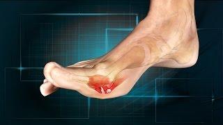 Download Turf Toe: Causes, Symptoms, Treatment Video