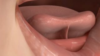 Download Tongue Tie Release Treatment Video