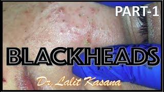 Download Blackhead removal by Dr.Lalit Kasana (23/01/2019) Video