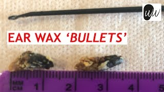 Download Ear Wax Removal of Wax 'Bullets' - #361 Video