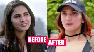 Download Vaani Kapoor Plastic Surgery Gone Wrong Horribly Video