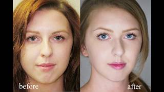Download My Experience with Braces & Jaw Surgery Video